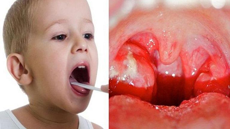 Viêm amidan ở trẻ em là bệnh khá phổ biến cha mẹ cần chú ý, một vài cách phòng viêm amidan cho trẻ sau đây