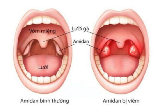 Amidan có vai trò bảo vệ hệ hô hấp, loại bỏ vi khuẩn