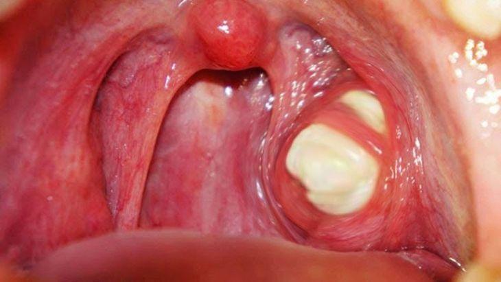 Viêm amidan hốc mủ nặng có thể được chỉ định cắt amidan